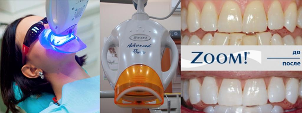 Лечение зубов, профилактика